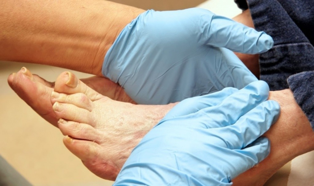 доктор в перчатках осматривает ноги пациента